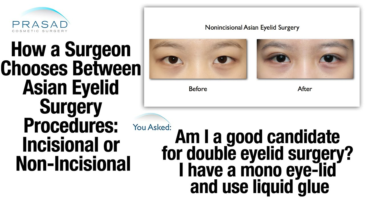 How to Choose Incisional or Non-Incisional Asian Double Eyelid ...