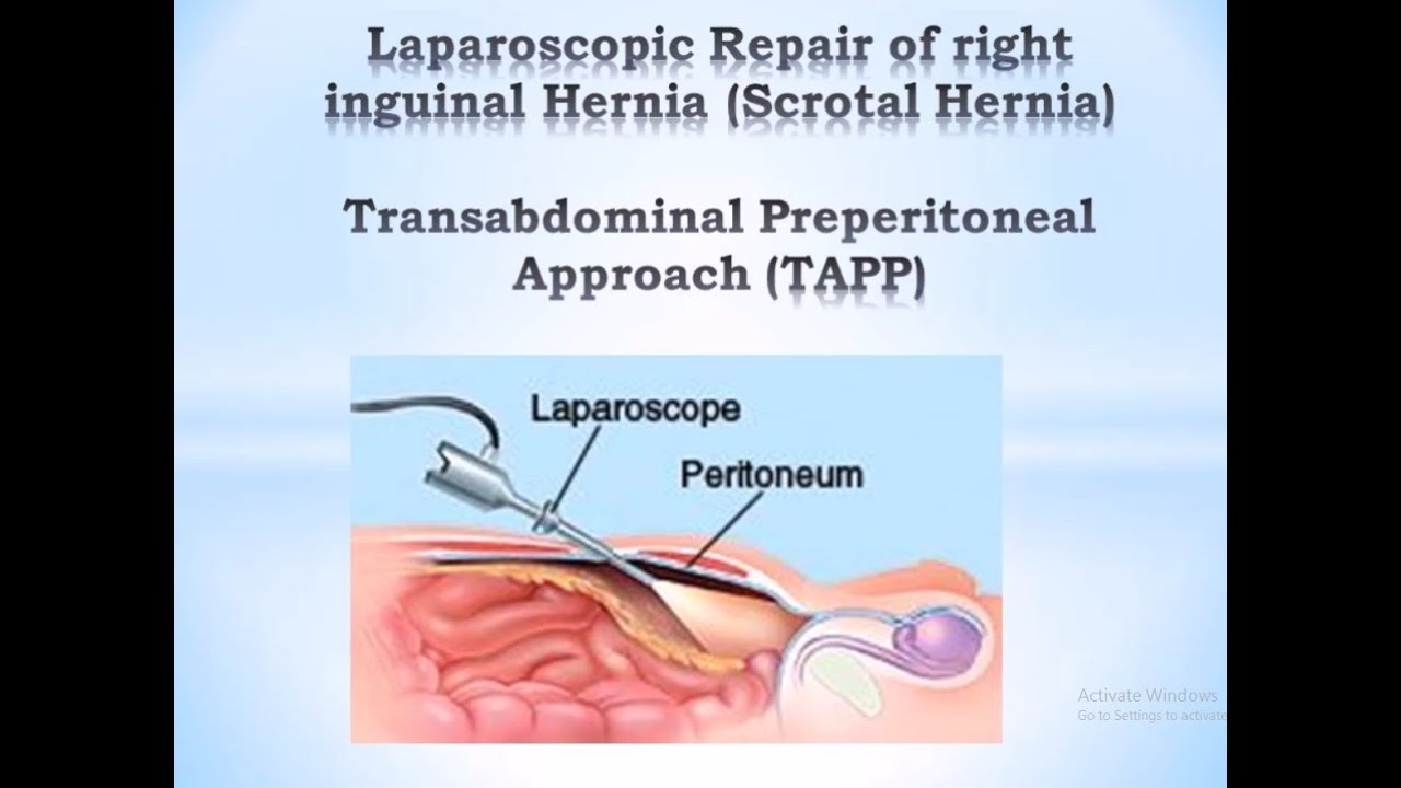 hernia tep approach - tapp and tep in the complicated ...