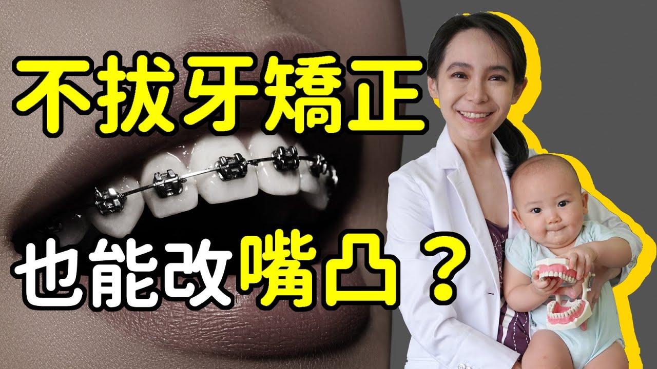 不拔牙矯正又要改善凸嘴的3個方法:修牙縫(亦可改善黑三角)、擴弓、骨釘後退牙齒|林榆芩醫師