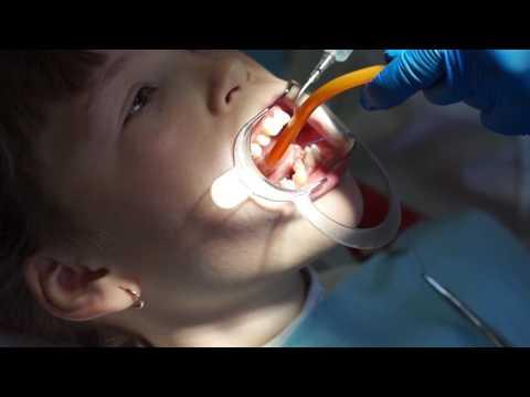 Короткая уздечка языка – коррекция или пластика уздечки языка |  стоматология Самара влог