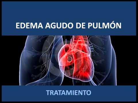 Top 10 Causas hipertensión Cuentas para cumplir con Twitter