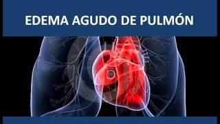 Pulmonar pdf agudo edema