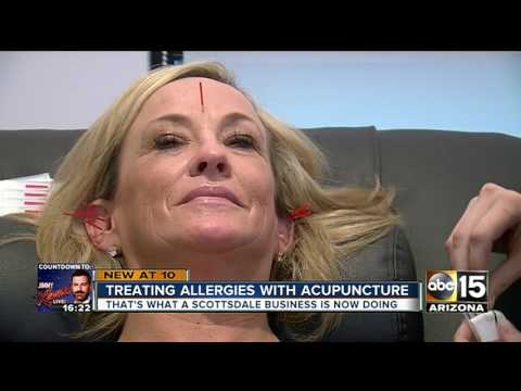 WHO KNEW? Acupuncture can help seasonal allergies