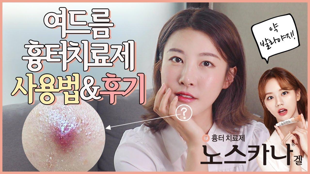 여드름 흉터치료제 사용법&후기