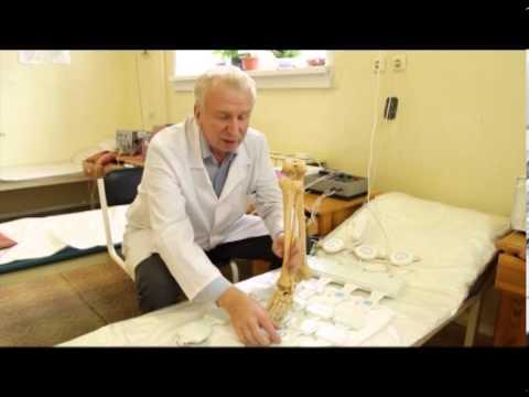 Артроз голеностопного сустава — лечение, симптомы, степени