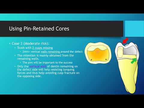 Using Pin-Retained Core for Holding Crowns