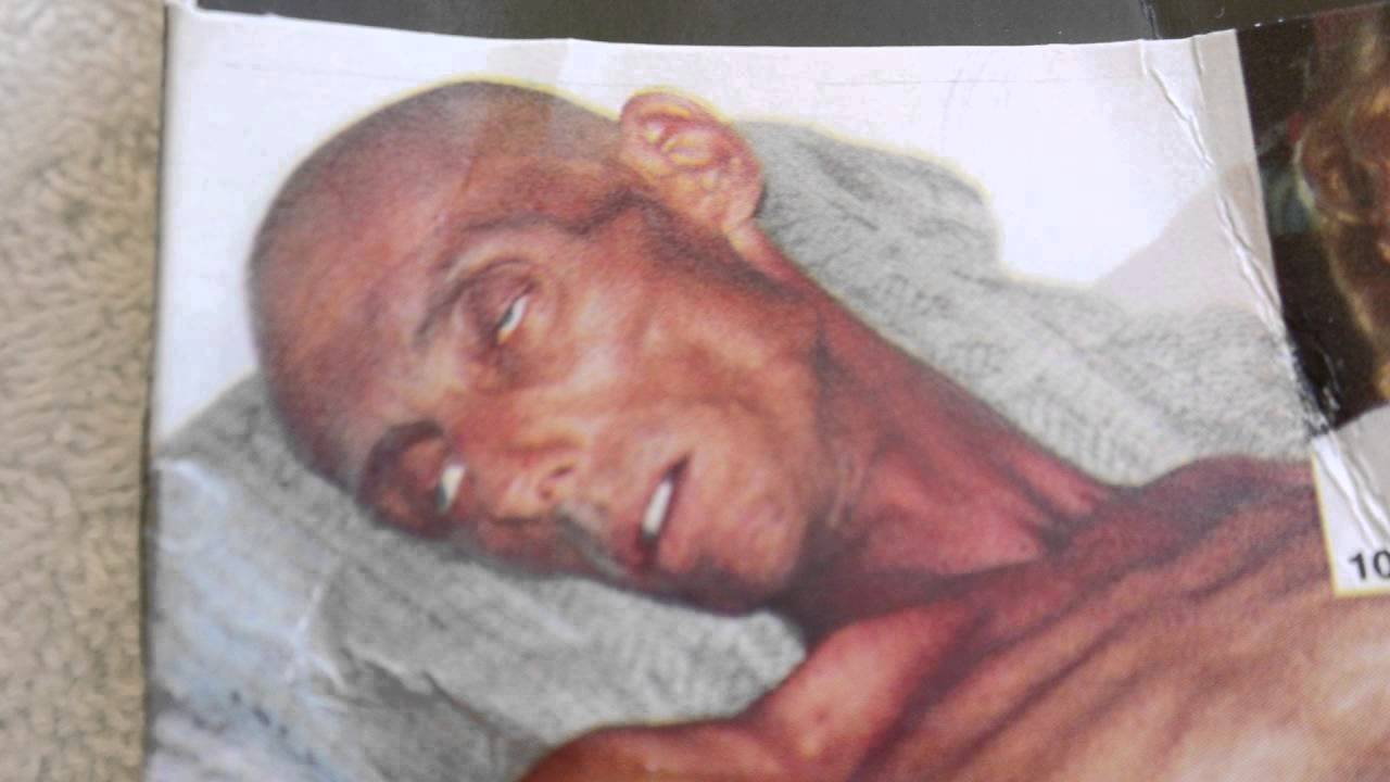 smoking cancer images