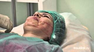 3D Моделирование (подтяжка кожи лица без операции)