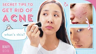 Banish CEO's Acne Story on How to Clear Hormonal Acne, Scarring & Hyperpigmentation (ft. Daisy Jing)