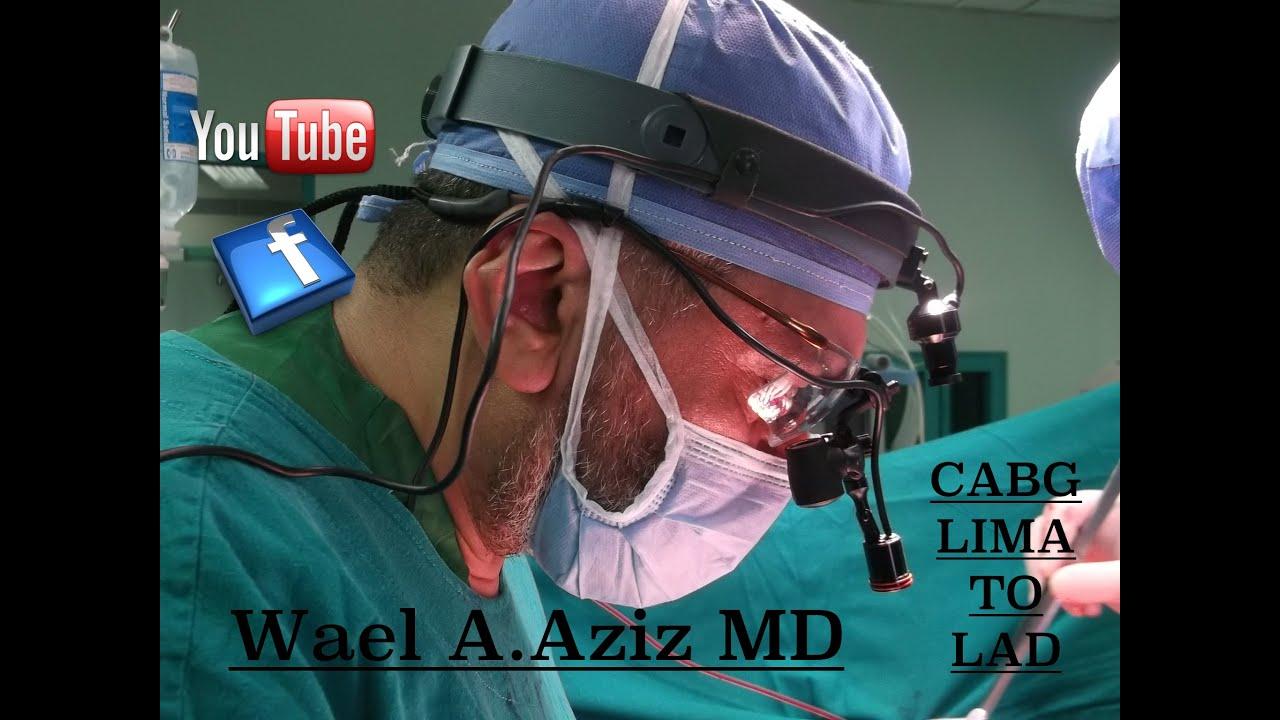 Open Heart Surgery CABG X4 LIMA TO LAD  WAEL ABDUL AZIZ ...