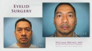Eyelid Surgery Beverly Hills | Dr. William Bruno