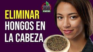 Remedios Caseros Para Eliminar Los HONGOS EN LA CABEZA