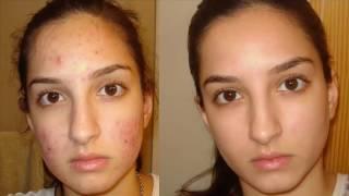 Comment SE DÉBARRASSER d'ACNE - 💐🍅  comment se  débarasser de l'acné et des taches vite! 🍎
