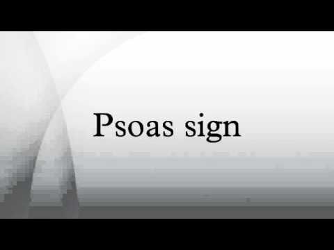 Psoas sign youtube for The sign