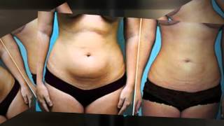 Repeat youtube video Breast Augmentation and Liposuction