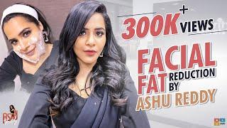 Fat Reduction - Facial Fat Reduction By Celebrity Secrets || Celeb Secrets || Ashu Reddy