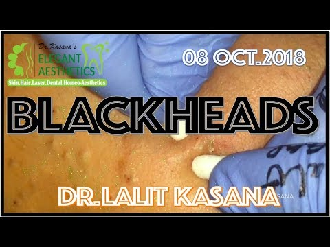 BLACKHEAD REMOVAL ANTI-ACNE THERAPY BY DR LALIT KASANA 08OCT 2018