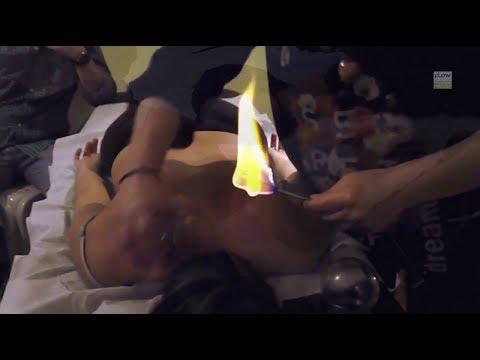 Fire Cupping, Gua sha & Moxibustion course