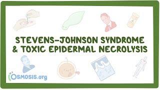 Stevens–Johnson Syndrome & Toxic Epidermal Necrolysis