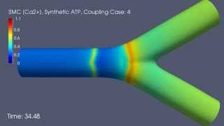 [Ca2+] Waves in Smooth Muscle Cells: Coupling Case 4