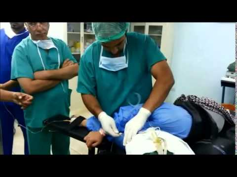 بالون المعدة للرشاقة الدكتور حيدر علي الرماحي BIB  for decrease body weight Dr.Haider Ali