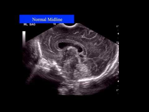 Neonatal Neurosonography   The Premature Infant