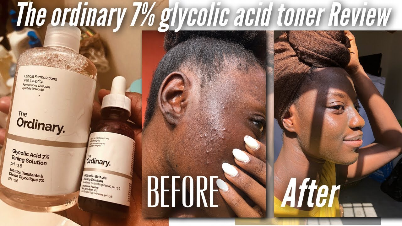 Glycolic acid 7% Toning Solution by the ordinary #17