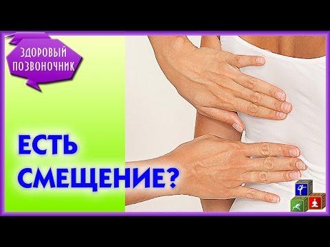 Защемление шейного позвонка - симптомы и лечение