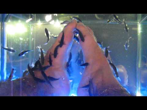 Fish eating my feet! fish spa, Healing Fish - Turkey, doctor fish dead skin