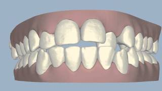 San Antonio Invisalign Simulation #4 -- Cosmetic Dental Associates Thumbnail