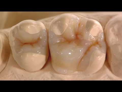 Dental Heaven, A Higher Quality Of Care
