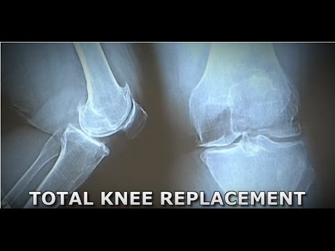 Surgical Video - Minimally Invasive Total Knee Replacement