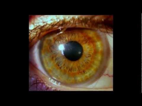 Aprende Diagnostico por iris y Orinoterapia TV NUESTRO MUNDO HOLISTICO
