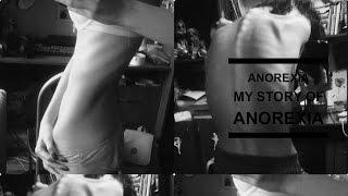 Анорексия Моя история / История похудения / Как похудеть на 18 килограмм