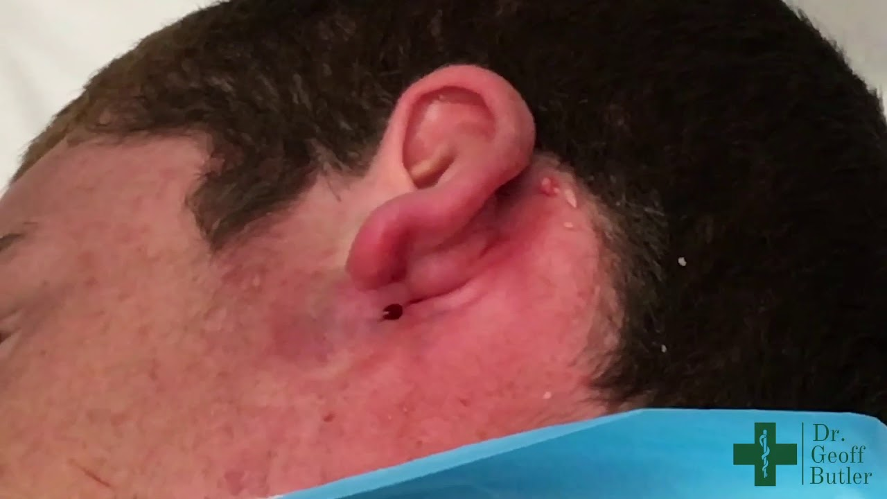 Drainage of an infected cyst behind the ear