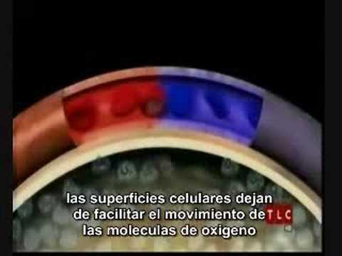 Hipertension Arterial Pulmonar - YouTube