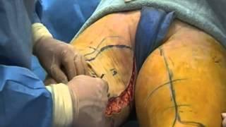 Dr  Hunstad Vertical Thigh Lift