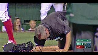 Paul Emmel's Head Cracked Open By Bat