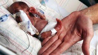 Самые крупные и крохотные младенцы в мире