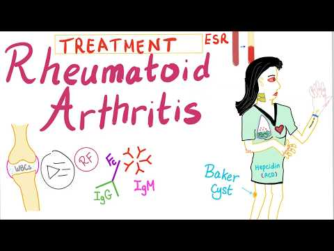 Rheumatoid Arthritis (Part 10): Management, Introduction