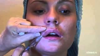 Контурная пластика губ. Увеличение гиалуроновой кислотой(Контурная пластика губ – это не только способ изменить форму и объем губ, но и метод устранения некоторых..., 2015-01-20T11:26:00.000Z)