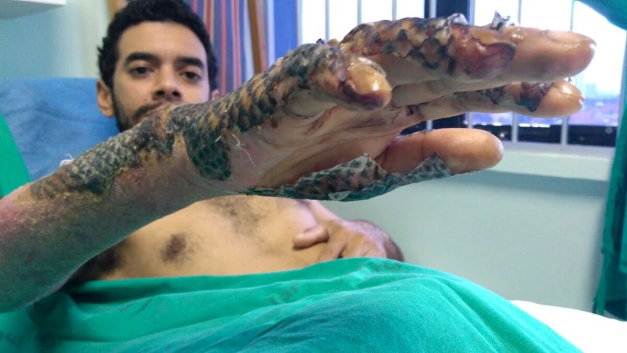 Download Can tilapia skin be used to bandage burns?