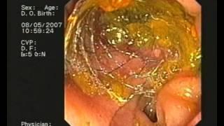 Замена билиарного стента у пациента с псевдотуморозным хроническим панкреатитом