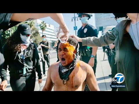 Man attacked by Trump supporters in DTLA speaks out