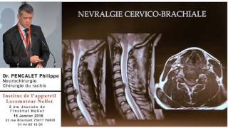 Docteur PENCALET Philippe - Quand opérer un rachis cervical dégénératif ?