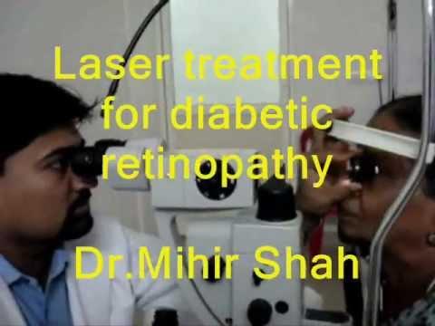 Laser treatment for diabetic retinopathy of eye done by Dr.Mihir Shah at Kozhikode, Kerala
