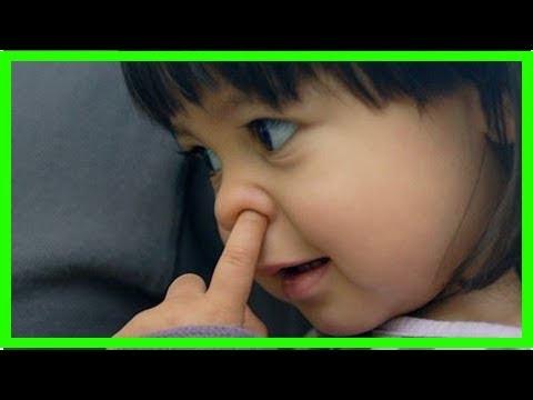 鼻孔長痘痘好痛!專家教你如何處理 - YouTube