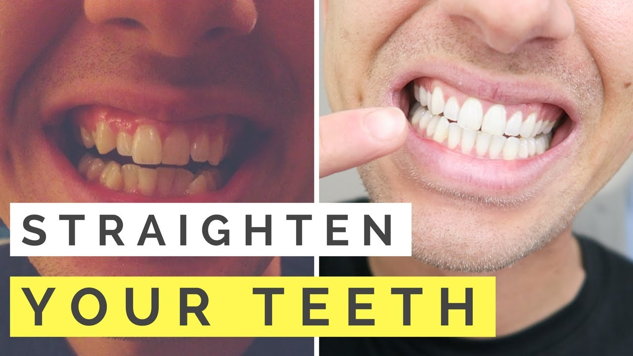 Invisalign teen effectively straightens teeth pity, that