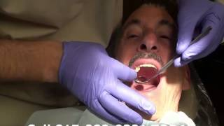 Part 21 Dr. Eberlein Permanent Bridge Placement And Adjustment To Insure A Correct Fit