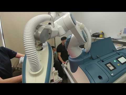 Patient's experience. Case 2. ARTAS Robotic Hair Restoration. Hair Transplant Florida Wilton Manors